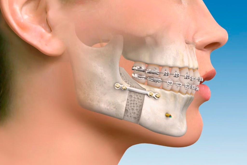 Todo lo que tienes que saber sobre la cirugía maxilofacial