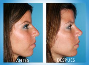Fotos del antes y despues de una cirugia de nariz 27