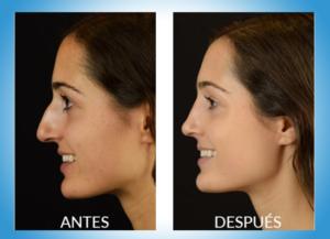 Fotos del antes y despues de una cirugia de nariz 62